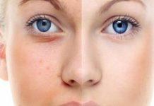 Consejos para Ajustar el Tono de la Piel de forma Natural